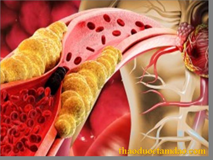 ĐTHT ngăn ngừa xơ vữa mạch
